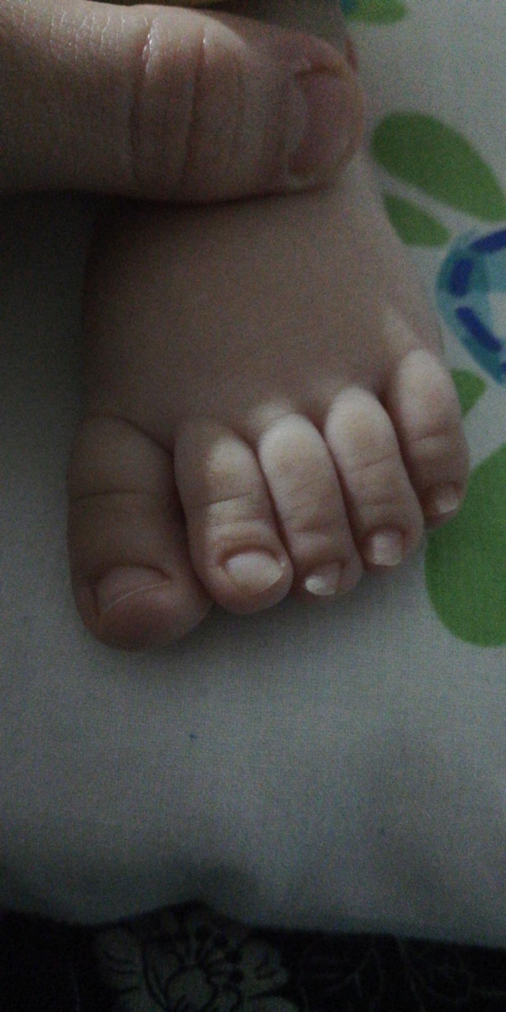 (Resimli) 7 aylık oğlumun tırnakları yamuk neden olabilir