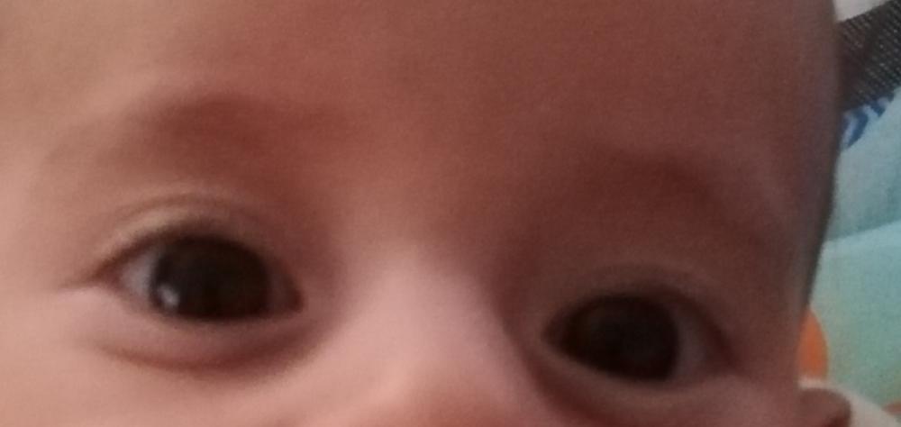 Bebekte şaşılık ve göz altının şişliği